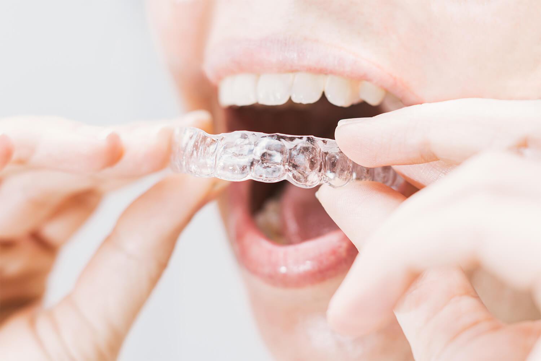 ortodoncia inisalign