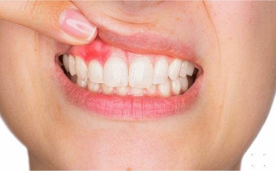 periodoncia clinica dental garaizar
